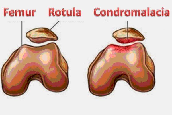 Condropatia Rotuliana