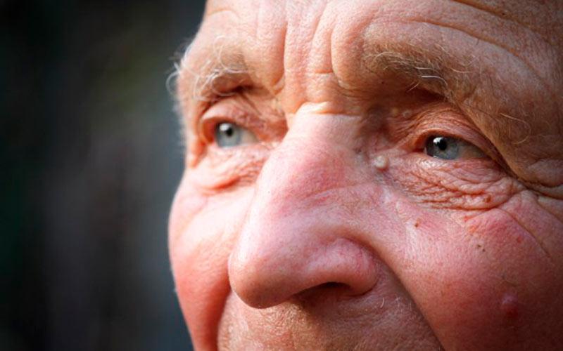 Lledó Neurología Anciano
